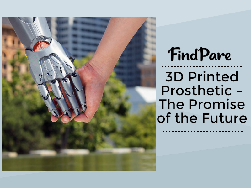 3D Printed Prosthetic – The Promise of the Future